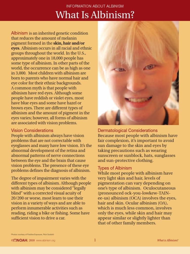 albinism a genetic and social interpretation essay