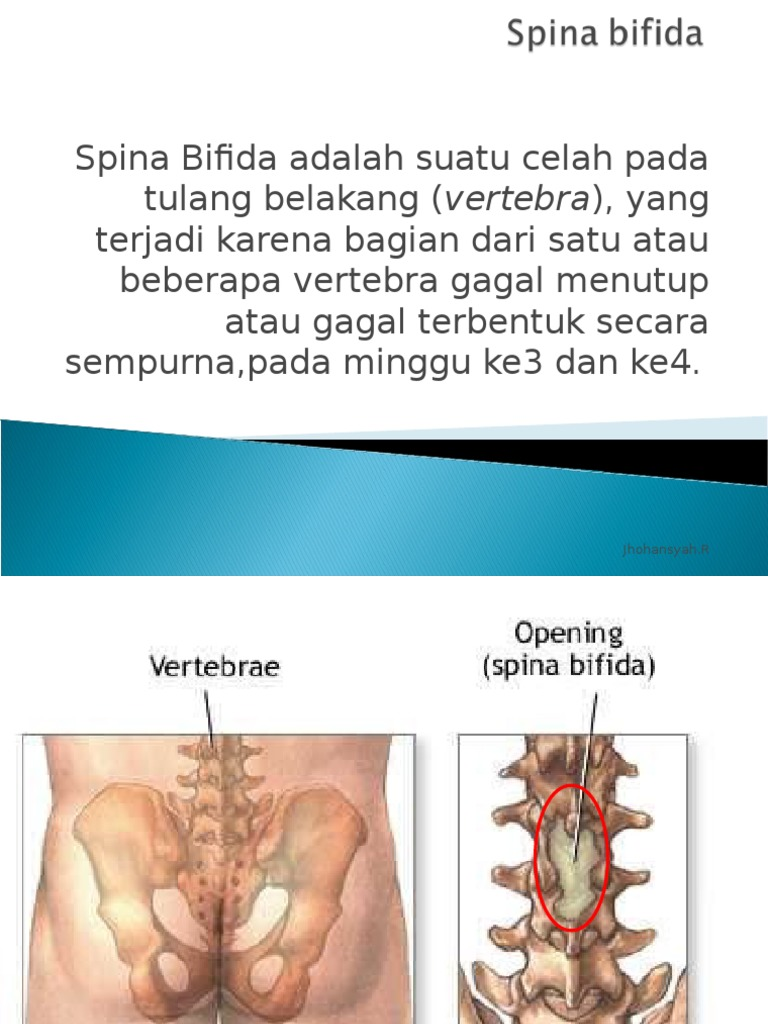 spinal bifida essay View this essay on spina bifida and nursing care interventions the the purpose of this study is to examine spina bifida and nursing care interventions spina essay spina bifida and nursing care interventions the and 90,000+ more term papers written by professionals and your peers.