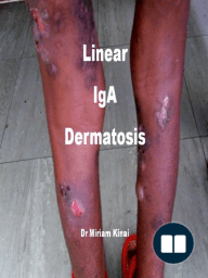 Linear IgA Dermatosis