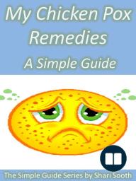 My Chicken Pox Remedies