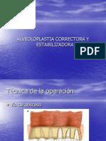 alveolotomiacorrectoraytoruspalatinolingual-120518114840-phpapp01