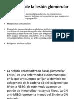 Patogenia de la lesión glomerular
