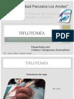 TiflotoMía