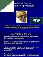 Mandibular Fractres