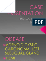 Case Presentation Adenoid Cystic Carcinoma-Ayana