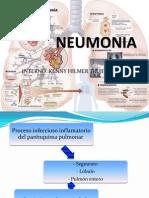 Neumonía en general