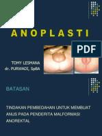 Anoplasty