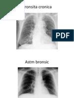 radiografii toracice