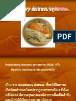RDS in Pediatrics