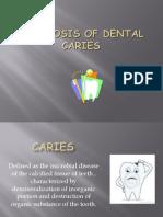 Diagnosis of Dental Caries