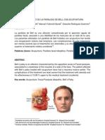 Art Paralisis Facial Unilateral