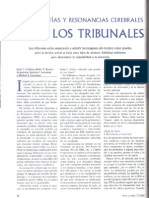 Tomografías y resonancias cerebrales ante los tribunales