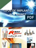 Tipos de Implantes Por Marcas
