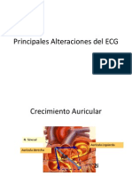 EKG Patologico