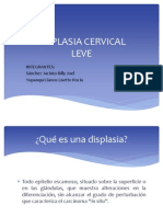 Displasia Cervical NIC I