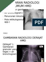 Gambaran Radiologi Umum Hmd