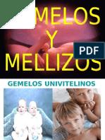 gemelos1-101009224016-phpapp02
