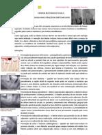 CIRURGIA II - Dentes Inclusos