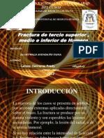 Fractura de Humero-2012