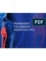 Permanent Pacemaker Insertion