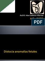 Distocia Anomalidad Fetal