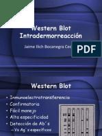 Western Blot e Intradermorreacción