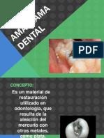 99151503 Amalgama Dental