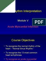 ECG Module 5