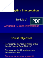 ECG Module 6