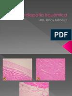Cardiopatía Isquémica 1