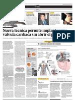 Nueva técnica permite implantar una valvula cardíaca sin abrir el pecho
