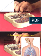 Enfermedades restrictivas respiratorias