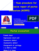 Pectus excavatum, Advanced  Nuss procedure