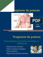 07 Transplante de Pulmon