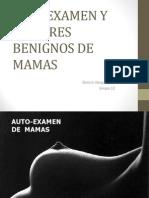 Tumores Benignos de Mama