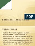 Internal and External Fixation