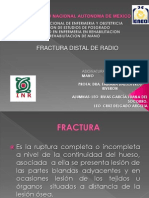 Exposicion Fractura de Radio