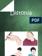 Distonía