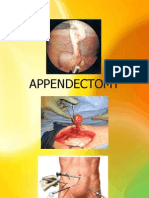 Appendectomy Case