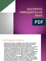 Mastopatía Fibroquística de Mama
