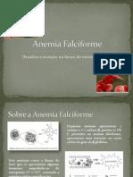 Anemia Falciforme - Seminário