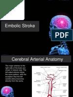 Pathophysiology Stroke