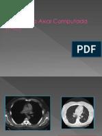 Tomografía Axial Computada (TAC)
