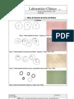 Atlas Do Exame de Urina de Rotina