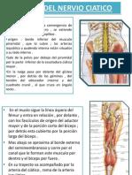 Lesion Del Nervio Ciatico