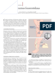 Alteraciones femoro rotulianas