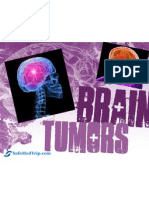Most Advanced Brain Tumor Treatment available at World Class  Hospitals in India