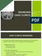 Neumonía, Caso clínico