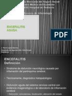 Encefalitis
