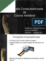 Tomografia computadorizada de coluna vertebral